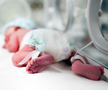 Is Cerebral Palsy Genetic Acquired CerebralPalsy - 1 in 10 babies cp map of us