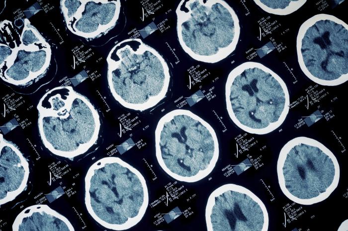 Cerebral Palsy Information